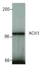 AP09880PU-N - TNK2 / ACK1