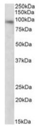 AP10034PU-N - DTX3 / RNF154