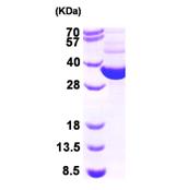AR09450PU-L - Thioredoxin reductase / TRXB