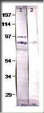 AP09915PU-N - Bestrophin-4
