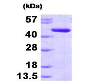 AR09468PU-L - Adenosine kinase