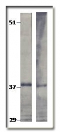 AP10354PU-N - TPD52