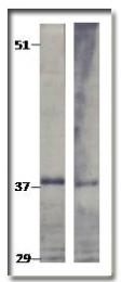 AP10355PU-N - TPD52