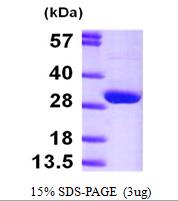 AR09522PU-L - HPRT1 / HPRT