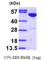 AR09523PU-L - IMPDH1 / IMPD1