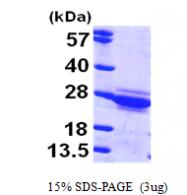 AR09529PU-L - Cytoglobin