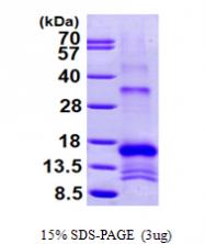 AR09536PU-L - Antileukoproteinase (ALP)