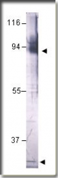 AP10119PU-N - LARP7