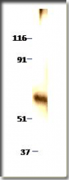 AP10148PU-N - MINPP1