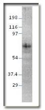 AP10176PU-N - Netrin-1
