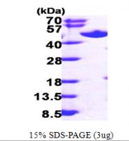AR09543PU-L - AdoHcyase / AHCY