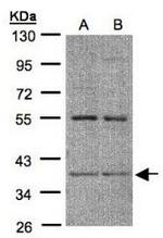 AP19012PU-N - CD191 / CCR1