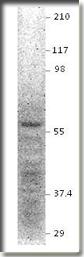 AP10172PU-N - NPY receptor 1 / NPY1R