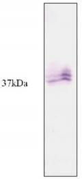 AP20018SU-N - KLK5 / Kallikrein-5