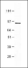 AP10248PU-N - PDE7B