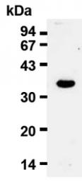 AM20023AF-N - Cyclin D2