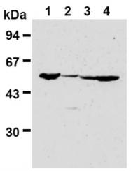 AM00318AF-N - FZR1 / CDH1