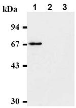 AM00536AF-N - CHK2
