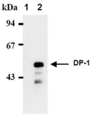 AM00404AF-N - TFDP1