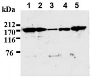 AM20036AF-N - IQGAP1