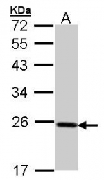 AP19022PU-N - Glutathione peroxidase 2 / GPX2