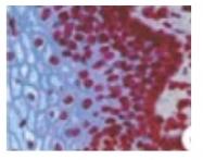 BM4502 - Lamin-B2 (LMNB2)