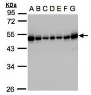 AP19040PU-N - RCC1 / CHC1