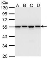 AP19044PU-N - hnRNP-H / HNRNPH1