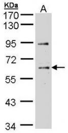 AP19049PU-N - CHK1