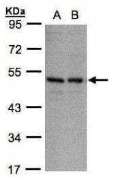 AP19051PU-N - CD158e / KIR3DL1
