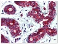 SM6002 - Tumor protein D54 (TPD52L2)