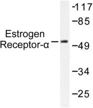 AP06108PU-N - Estrogen receptor alpha