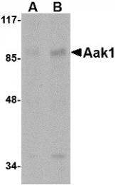 AP30002PU-N - AAK1