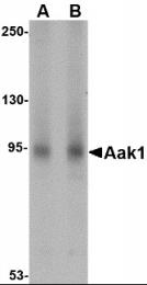 AP30003PU-N - AAK1