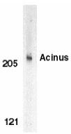 AP30010PU-N - Acinus / ACIN1