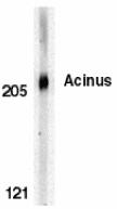 AP30011PU-N - Acinus / ACIN1