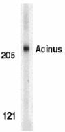 AP30012PU-N - Acinus / ACIN1