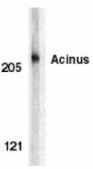AP30013PU-N - Acinus / ACIN1