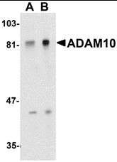 AP30017PU-N - CD156c / ADAM10