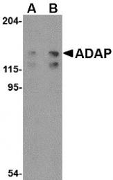 AP30019PU-N - FYN-binding protein