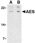 AP30025PU-N - AES / ESP1