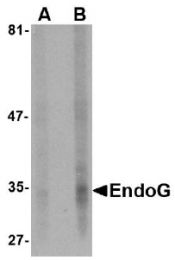AM20131PU-N - Endonuclease G
