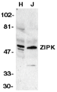 AP31006PU-N - DAPK3 / ZIPK