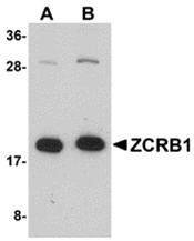AP31004PU-N - ZCRB1