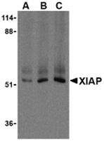 TA306170 - IAP3 / BIRC4
