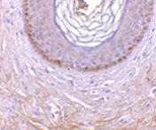 AP30992PU-N - EDA2R / TNFRSF27