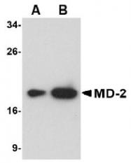 AM20141PU-N - MD-2