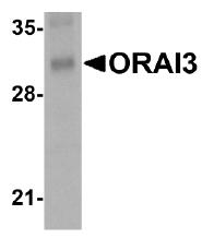 AM20143PU-N - ORAI3