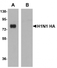 AM20156PU-N - Influenza A H1N1