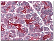 SM1822PS - Cytokeratin 19